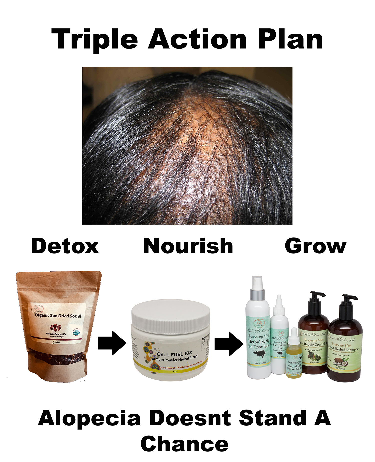 Alopecia Flyer Small